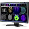 NEC Display Solutions / MD302C4 : plus performance pour les diagnostics